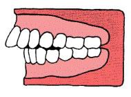 上顎突出(出っ歯)