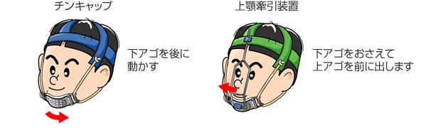 頭部固定法