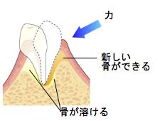歯周病治療のプロセス