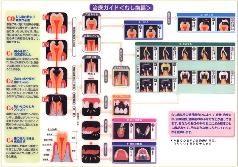 虫歯治療ガイド表