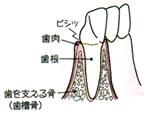 画像:歯周病の進行 初期