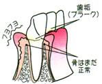 画像:歯肉炎