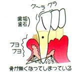 画像:歯周病重度