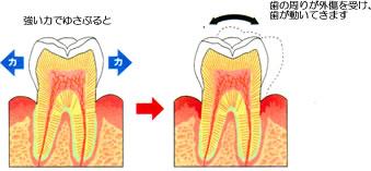 歯が揺れる原因