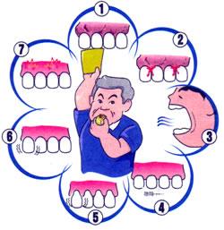 画像:歯周病をチェックする習慣を