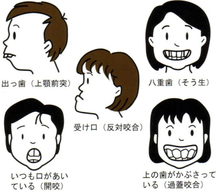 歯の並び方のイメージ