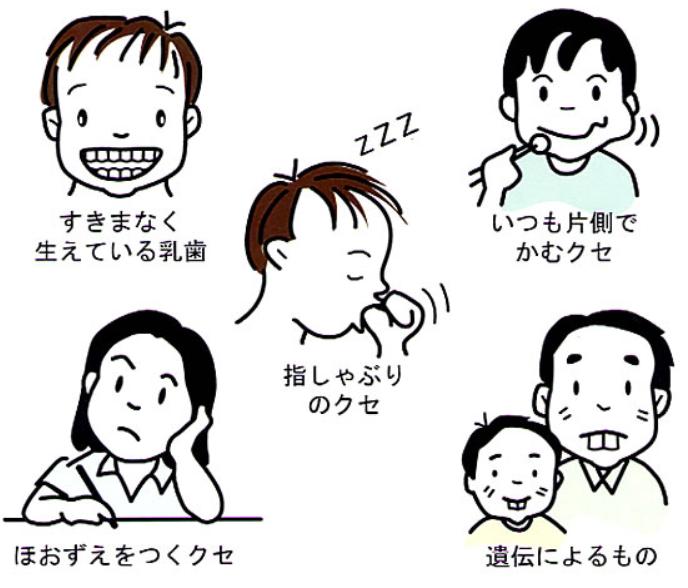 歯並びのイメージ