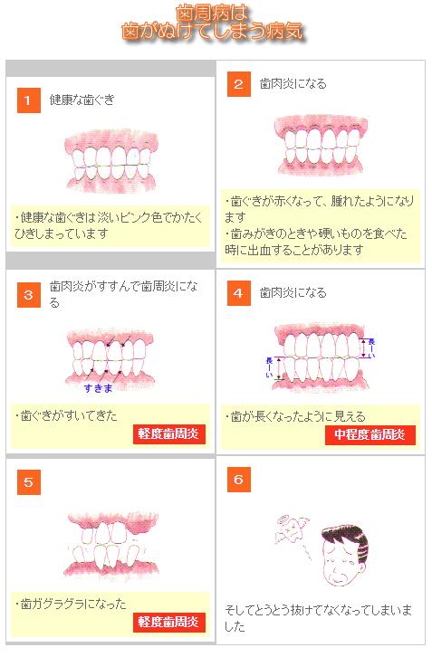 歯周病は歯が抜けてしまう病気