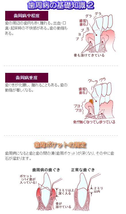 歯周病の基礎知識