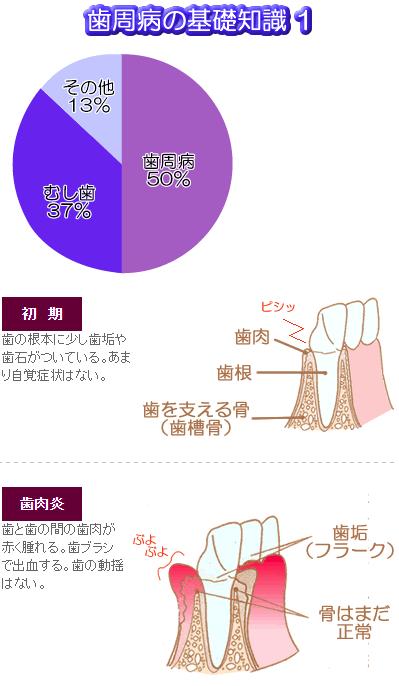歯周病の割合